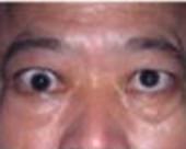 角膜ヘルペスの治療なら中国鍼灸院
