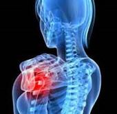 胸郭出口症候群の原因|胸郭出口症候群【整形外科系】